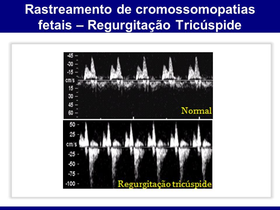 Rastreamento de cromossomopatias fetais – Regurgitação Tricúspide