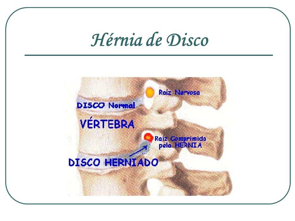 Hérnia de Disco