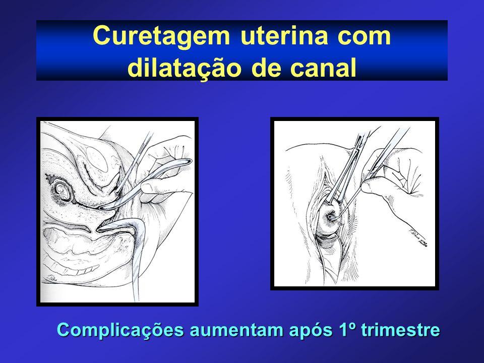 Curetagem uterina com dilatação de canal