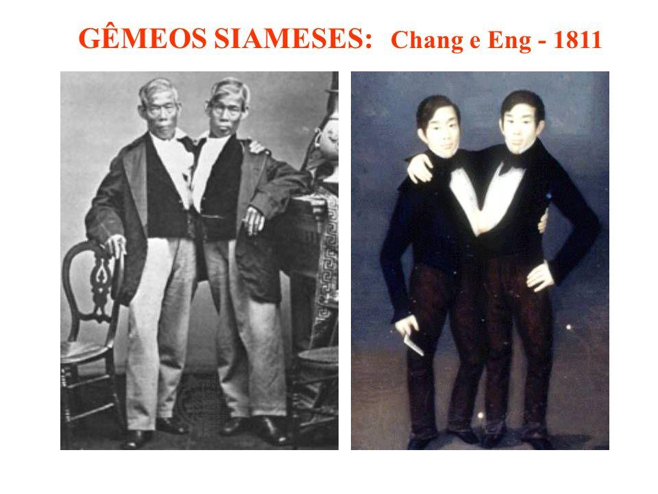 GÊMEOS SIAMESES: Chang e Eng - 1811