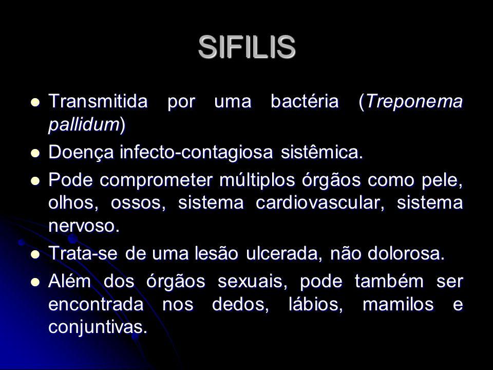 SIFILIS Transmitida por uma bactéria (Treponema pallidum)