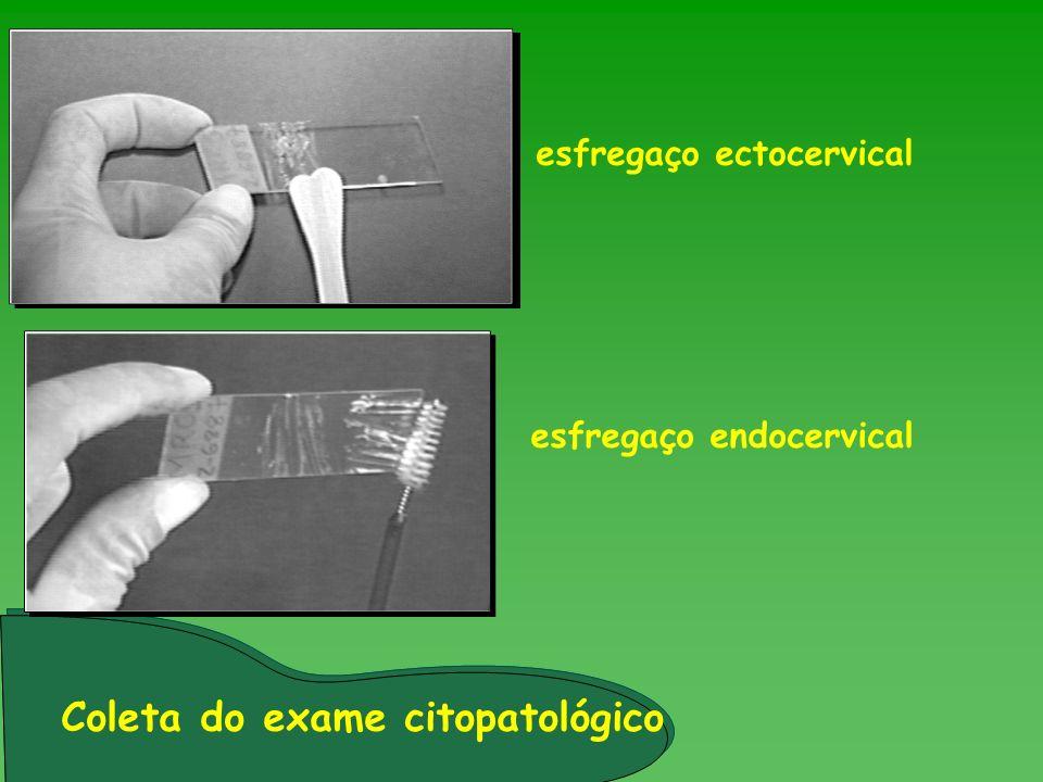 esfregaço ectocervical esfregaço endocervical