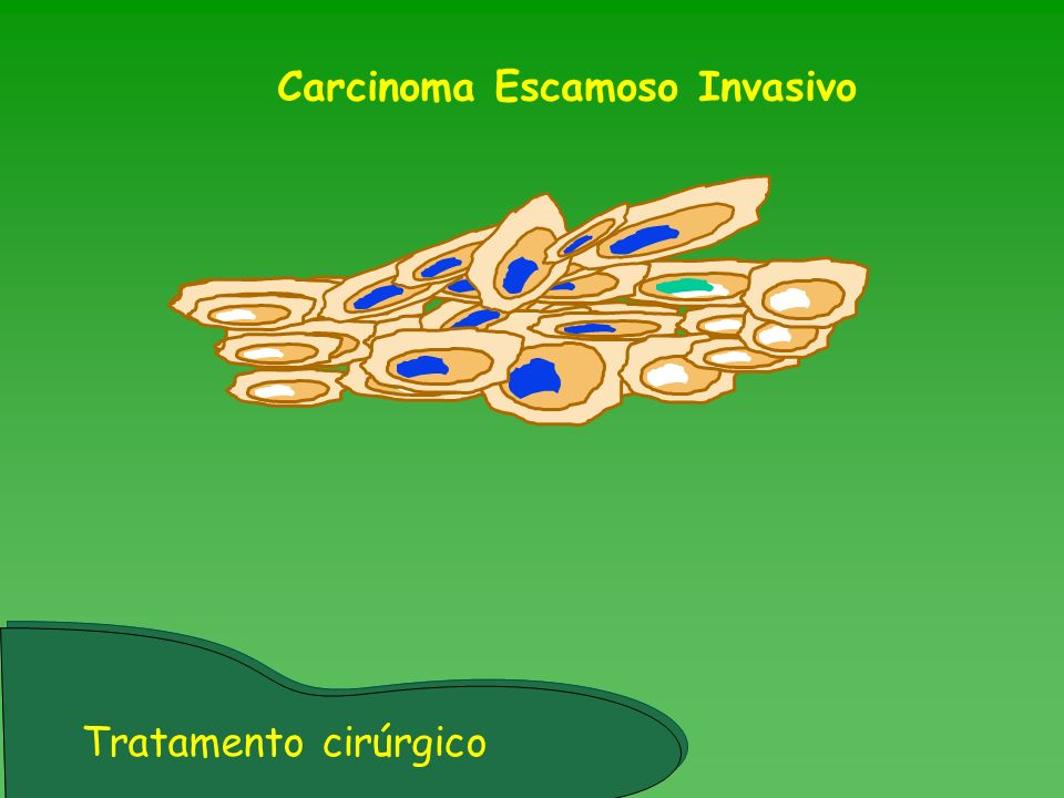 Carcinoma Escamoso Invasivo