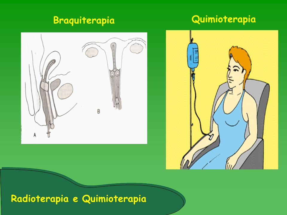 Braquiterapia Quimioterapia Radioterapia e Quimioterapia