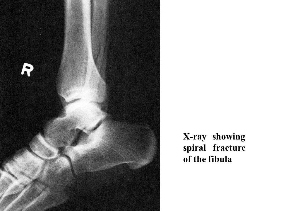 X-ray showing spiral fracture of the fibula
