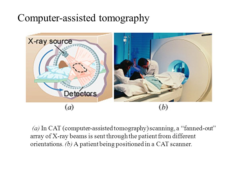 Computer-assisted tomography