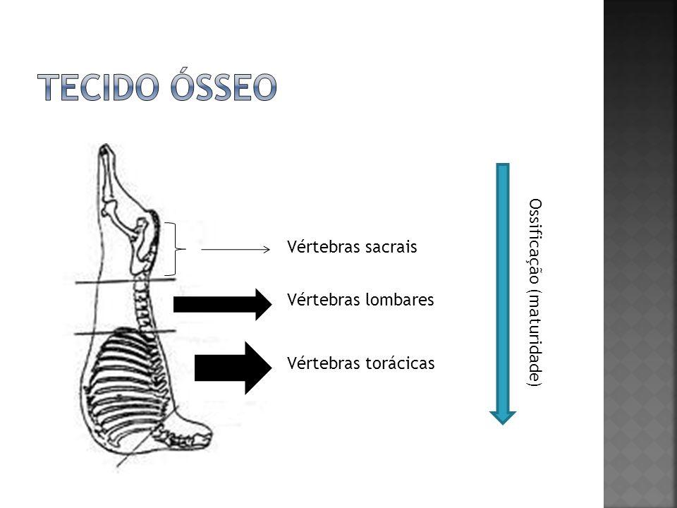 TECIDO ÓSSEO Ossificação (maturidade) Vértebras sacrais
