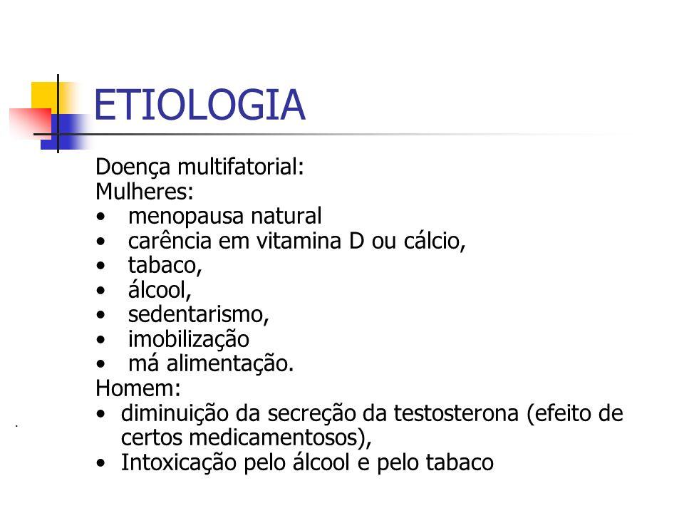 ETIOLOGIA Doença multifatorial: Mulheres: menopausa natural