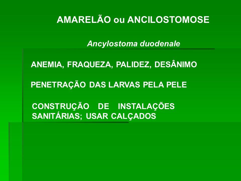 AMARELÃO ou ANCILOSTOMOSE