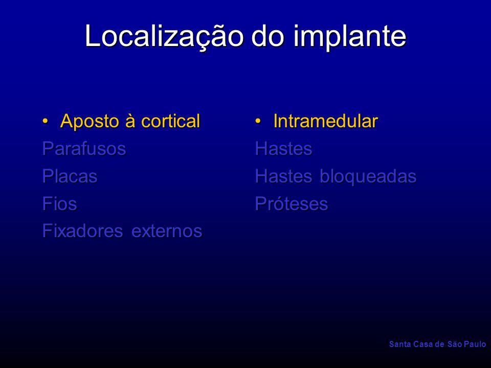 Localização do implante