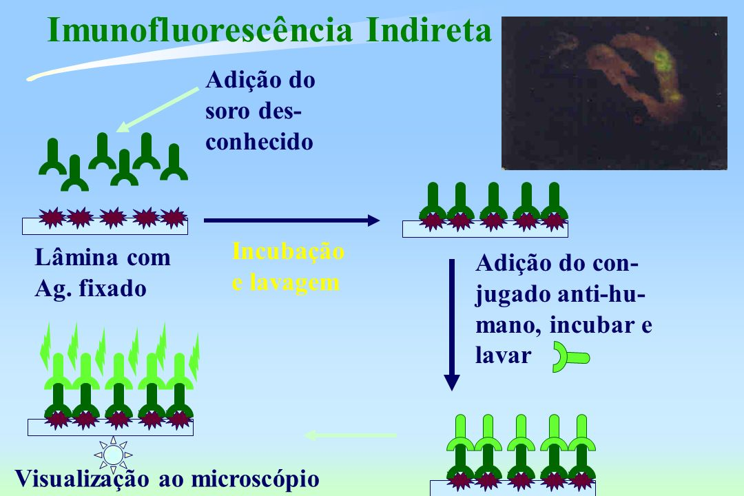 Imunofluorescência Indireta