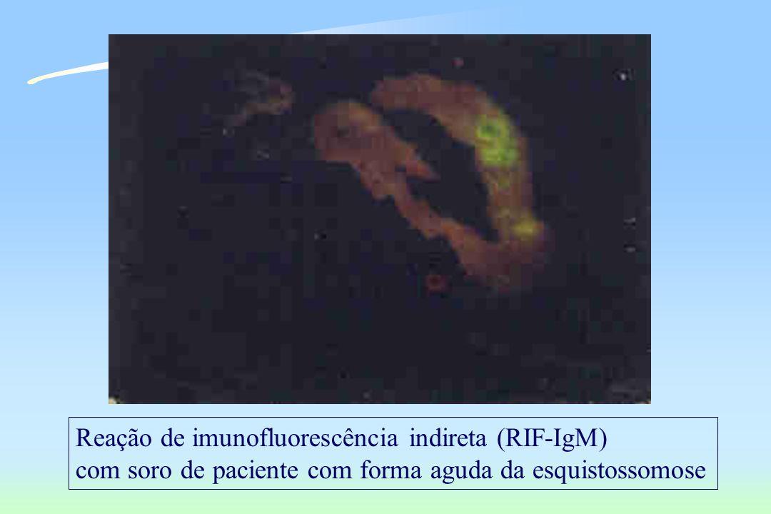 Reação de imunofluorescência indireta (RIF-IgM)