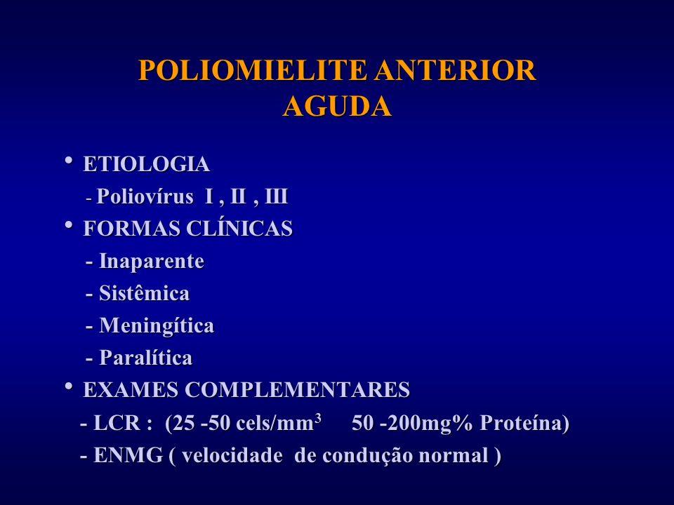 POLIOMIELITE ANTERIOR AGUDA