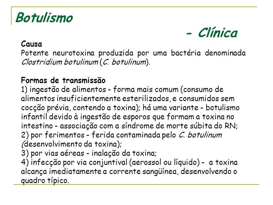 Botulismo - Clínica Causa