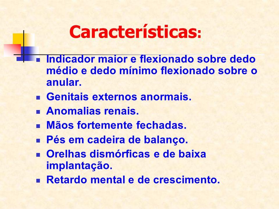 Características: Indicador maior e flexionado sobre dedo médio e dedo mínimo flexionado sobre o anular.
