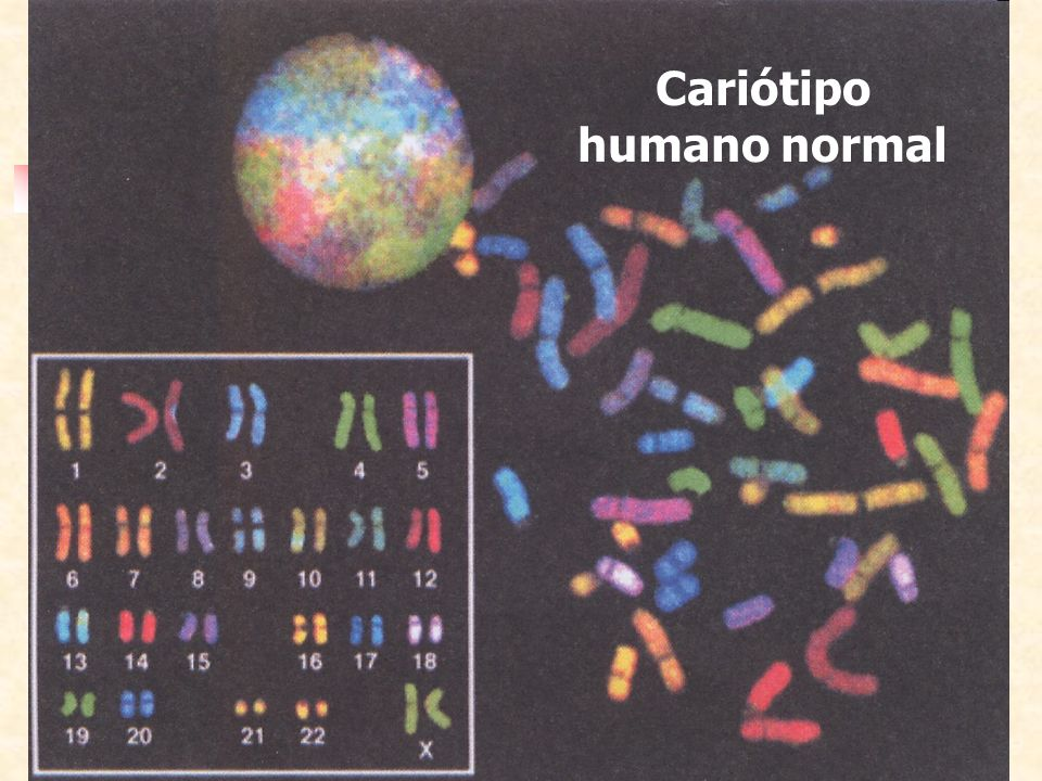 Cariótipo humano normal