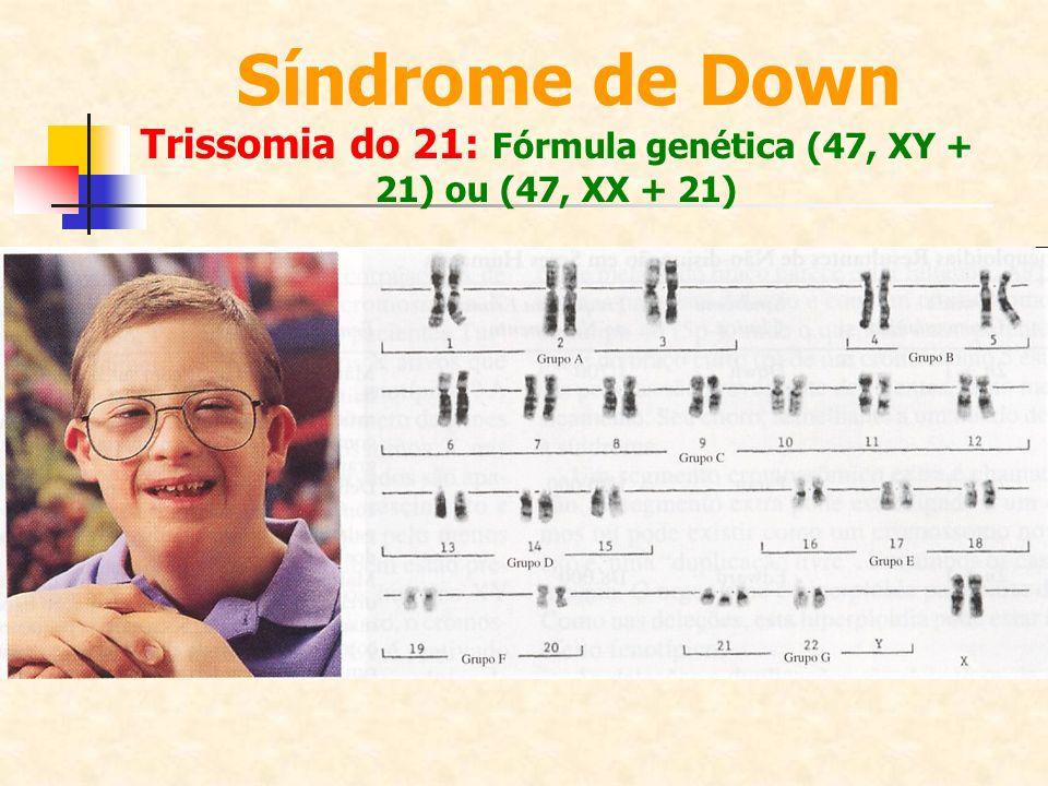 Trissomia do 21: Fórmula genética (47, XY + 21) ou (47, XX + 21)