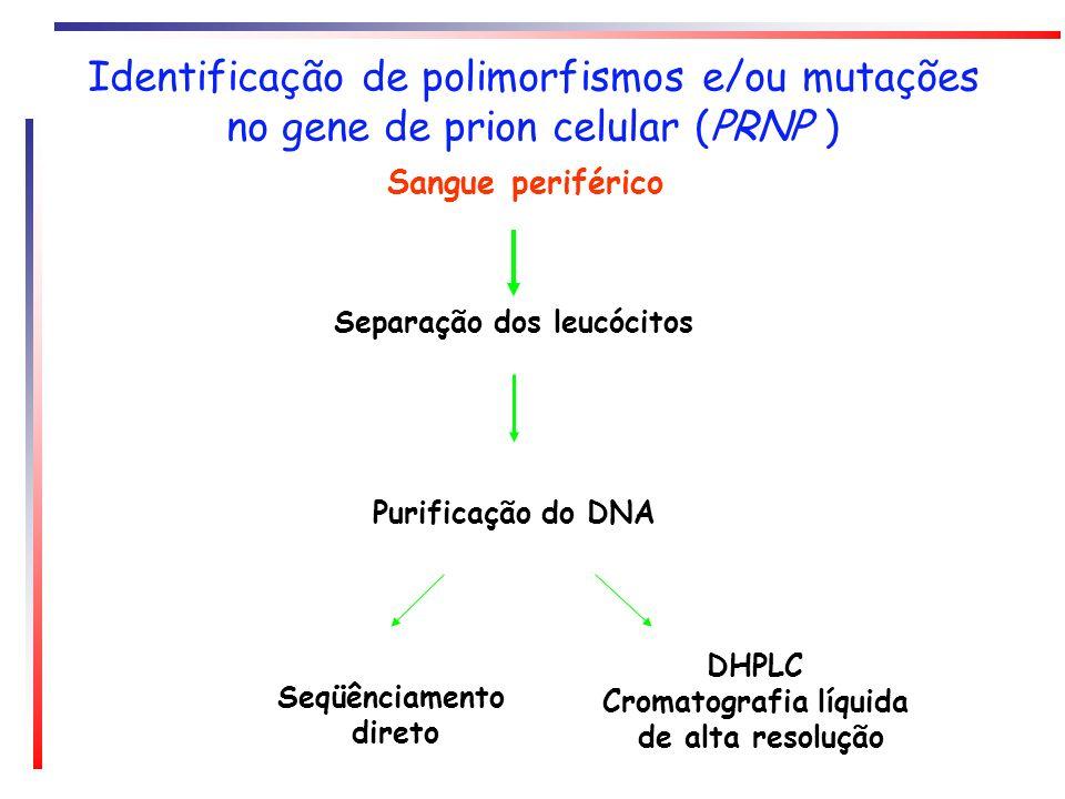 Cromatografia líquida