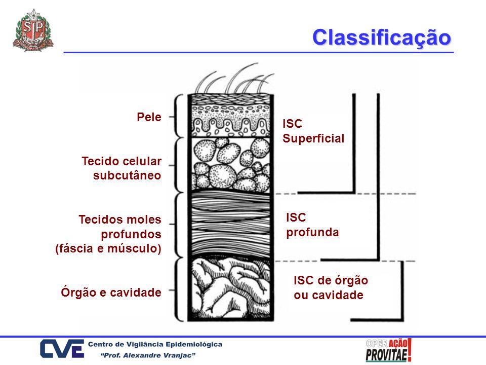 Classificação Pele ISC Tecido celular subcutâneo Superficial