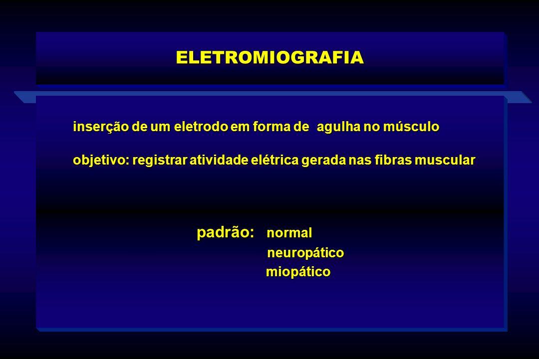 ELETROMIOGRAFIA inserção de um eletrodo em forma de agulha no músculo