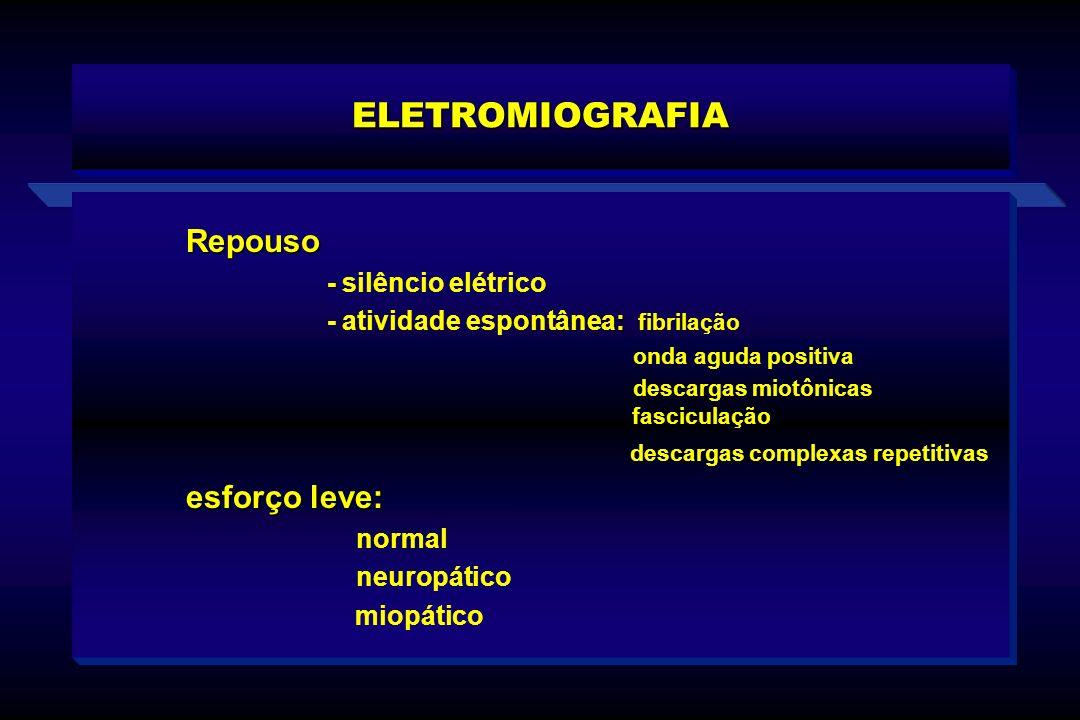 ELETROMIOGRAFIA Repouso - silêncio elétrico