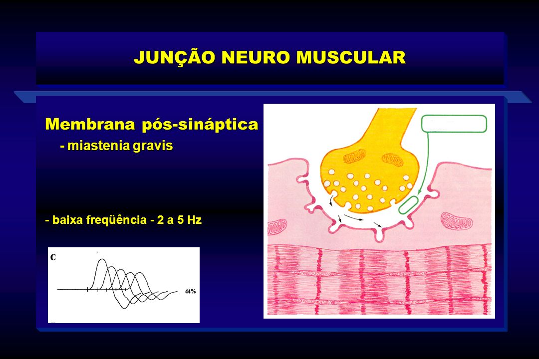JUNÇÃO NEURO MUSCULAR Membrana pós-sináptica - miastenia gravis