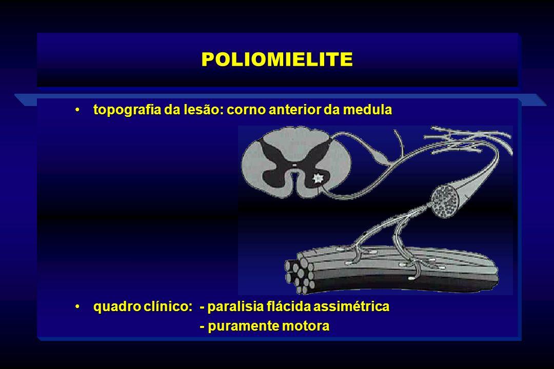 POLIOMIELITE topografia da lesão: corno anterior da medula