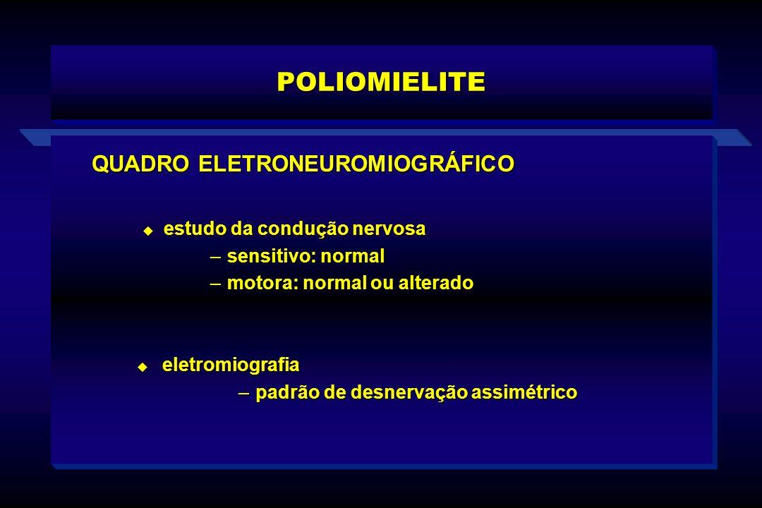POLIOMIELITE QUADRO ELETRONEUROMIOGRÁFICO estudo da condução nervosa