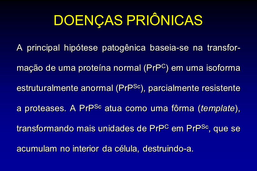 DOENÇAS PRIÔNICAS