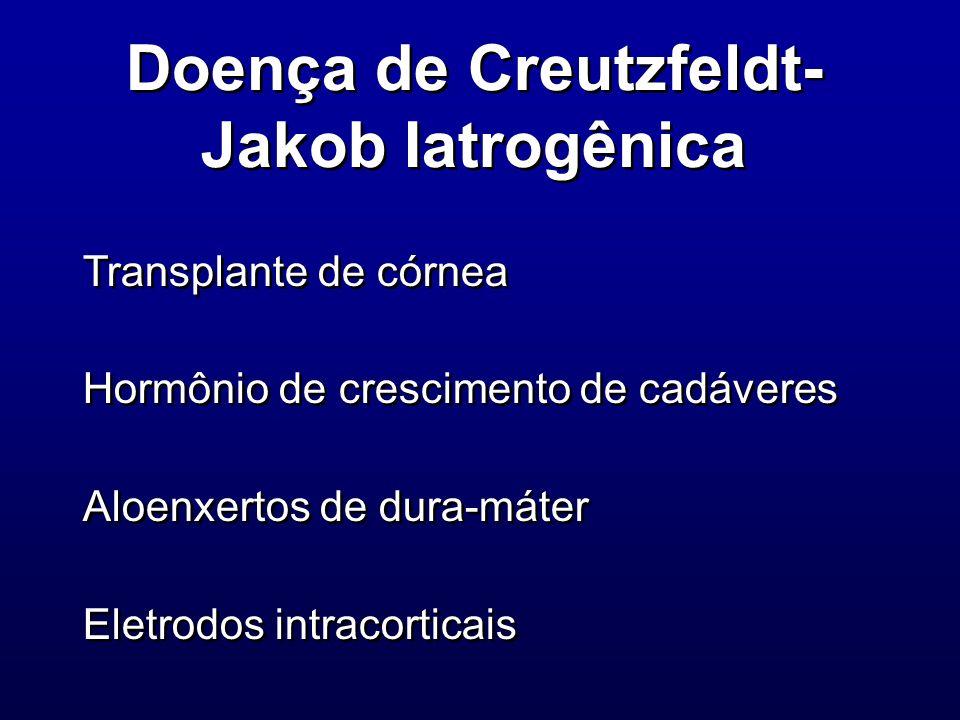 Doença de Creutzfeldt-Jakob Iatrogênica