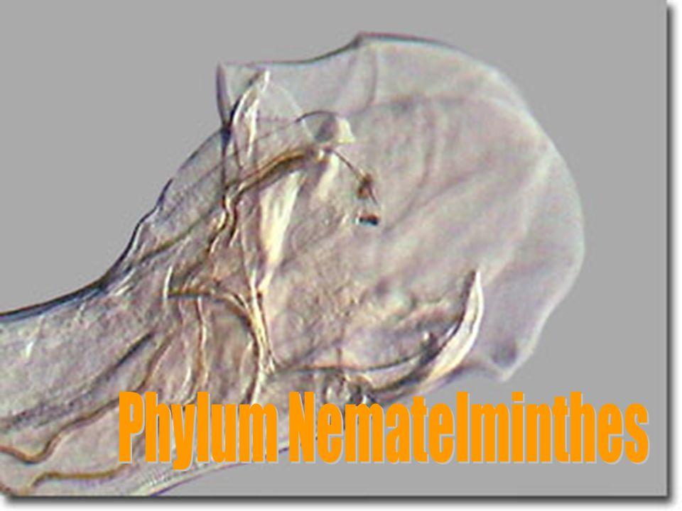 Phylum Nematelminthes