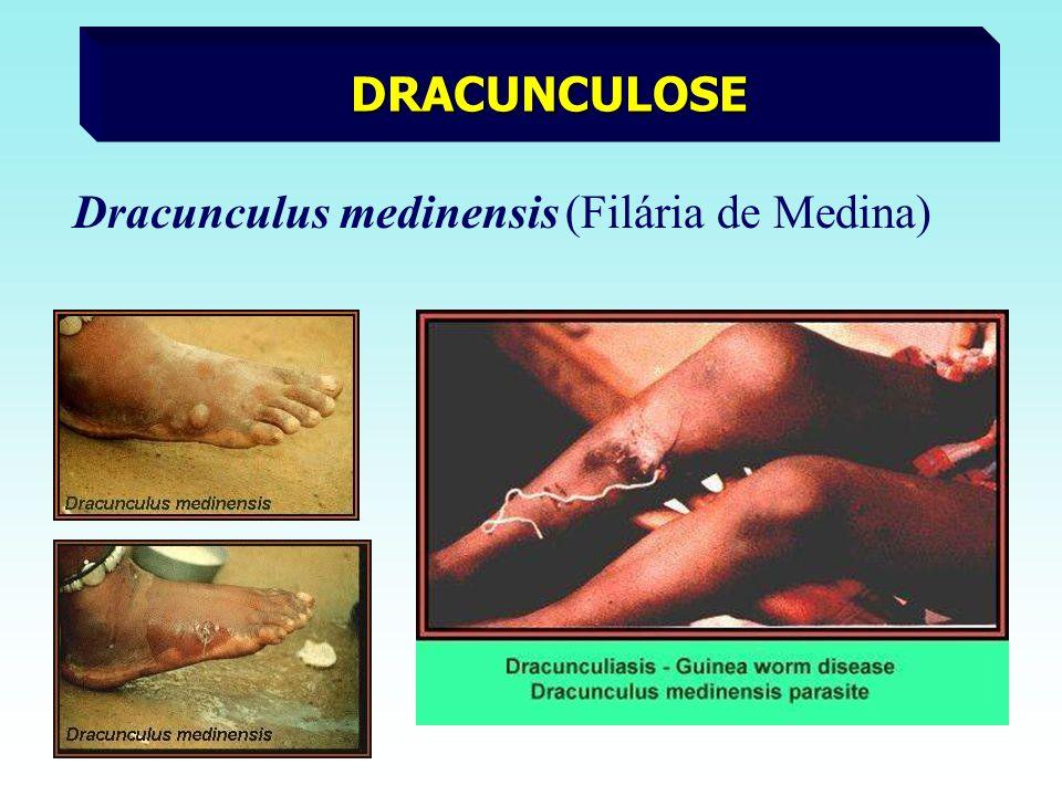DRACUNCULOSE Dracunculus medinensis (Filária de Medina)
