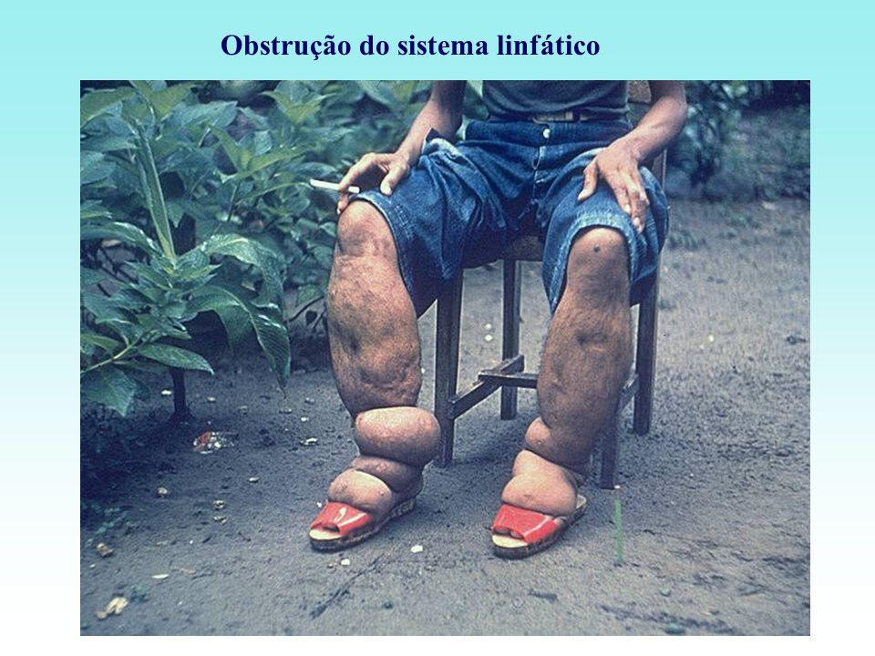 Obstrução do sistema linfático
