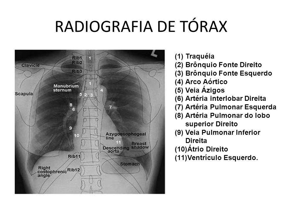 Moderno Arteria Pulmonar Anatomía Radiología Patrón - Imágenes de ...