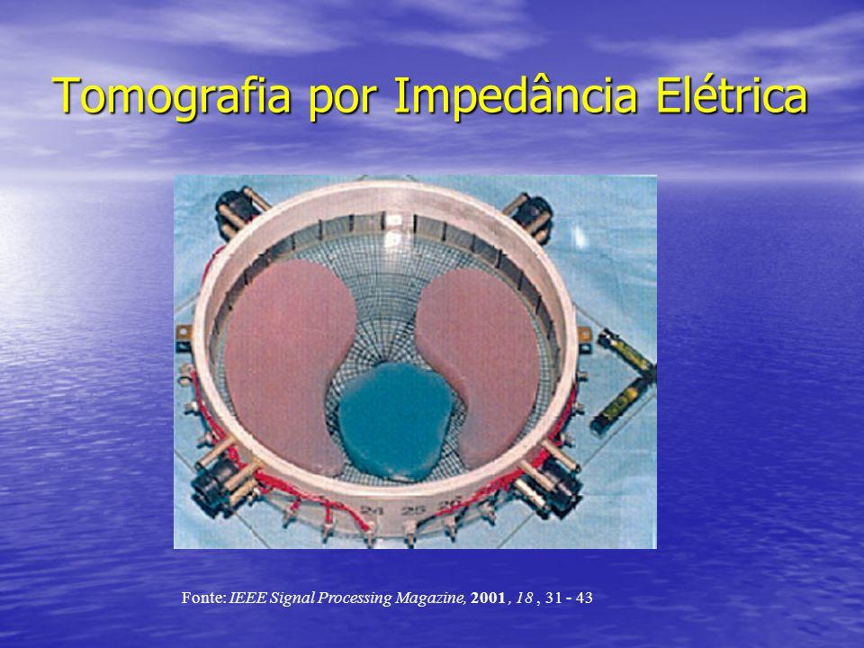 Tomografia por Impedância Elétrica