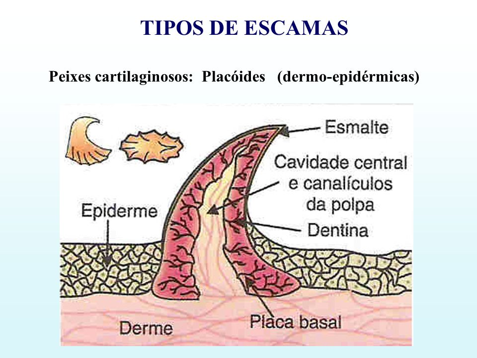 TIPOS DE ESCAMAS Peixes cartilaginosos: Placóides (dermo-epidérmicas)