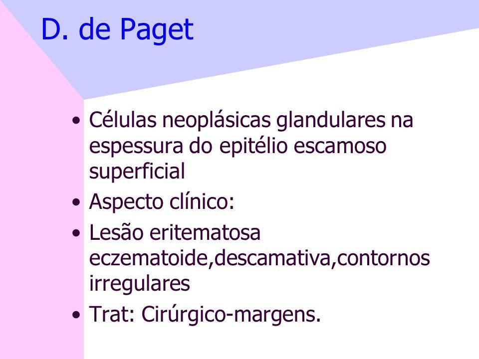 D. de Paget Células neoplásicas glandulares na espessura do epitélio escamoso superficial. Aspecto clínico: