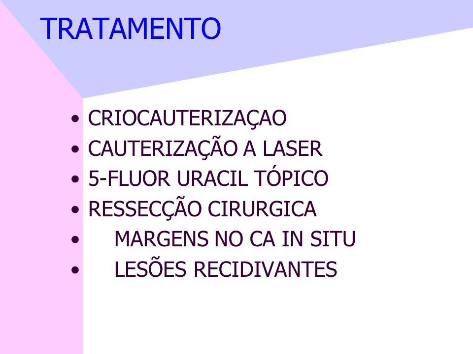 TRATAMENTO CRIOCAUTERIZAÇAO CAUTERIZAÇÃO A LASER 5-FLUOR URACIL TÓPICO