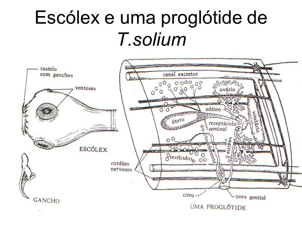 Escólex e uma proglótide de T.solium