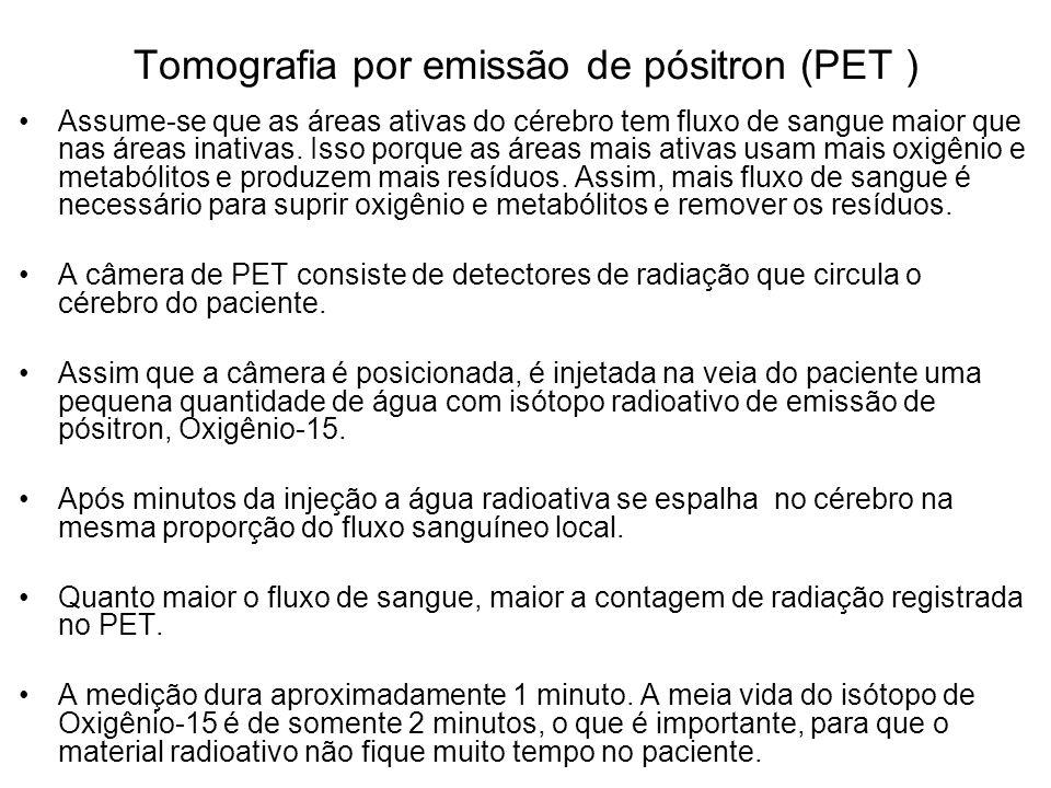 Tomografia por emissão de pósitron (PET )