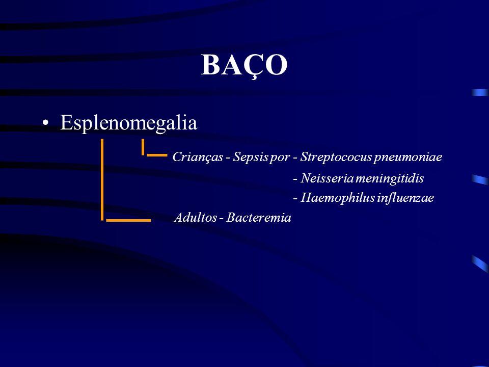 BAÇO Esplenomegalia Crianças - Sepsis por - Streptococus pneumoniae