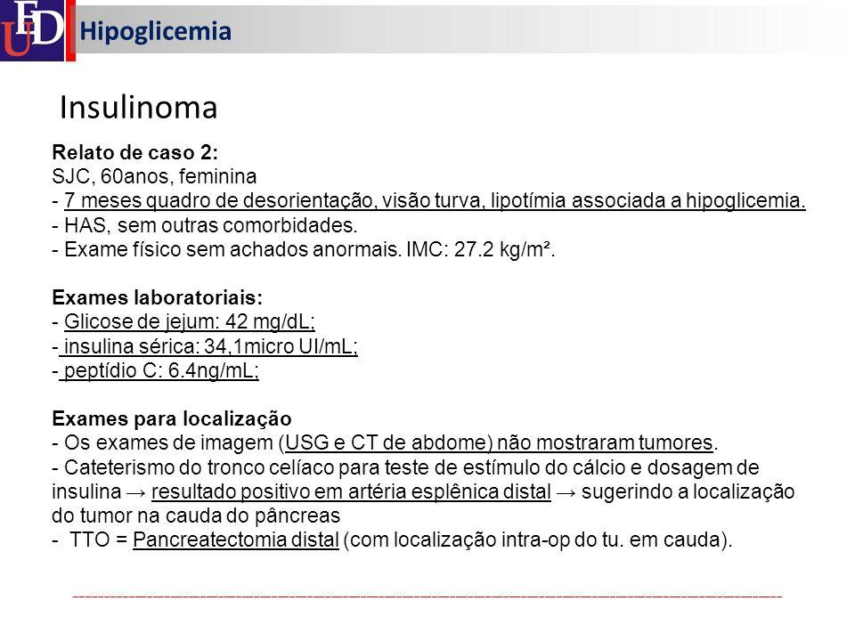 Insulinoma Hipoglicemia Relato de caso 2: SJC, 60anos, feminina