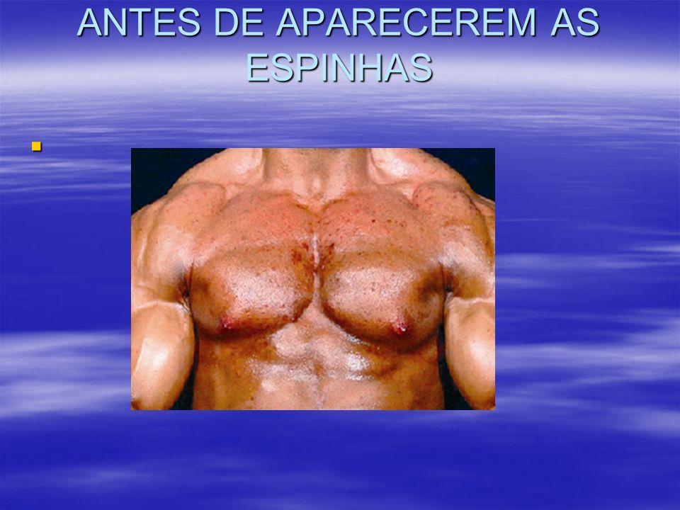 ANTES DE APARECEREM AS ESPINHAS