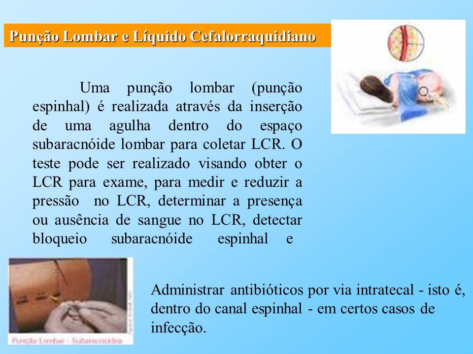 Punção Lombar e Líquido Cefalorraquidiano