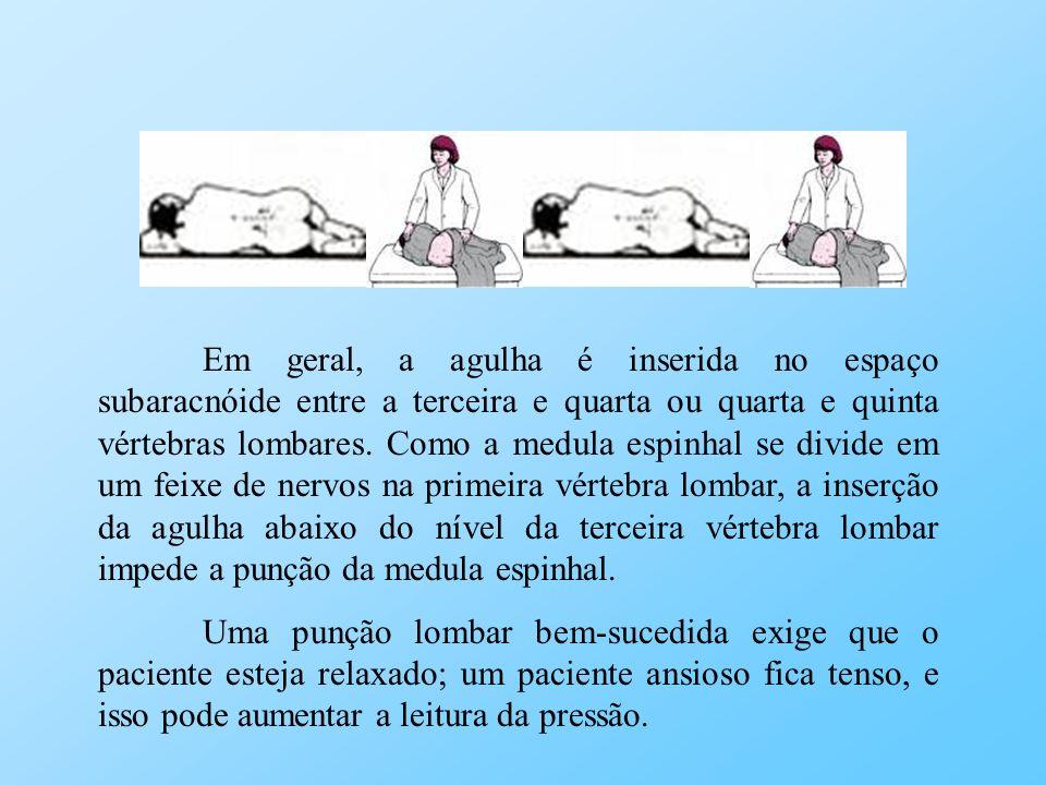 Em geral, a agulha é inserida no espaço subaracnóide entre a terceira e quarta ou quarta e quinta vértebras lombares. Como a medula espinhal se divide em um feixe de nervos na primeira vértebra lombar, a inserção da agulha abaixo do nível da terceira vértebra lombar impede a punção da medula espinhal.