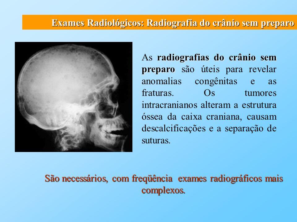 São necessários, com freqüência exames radiográficos mais complexos.