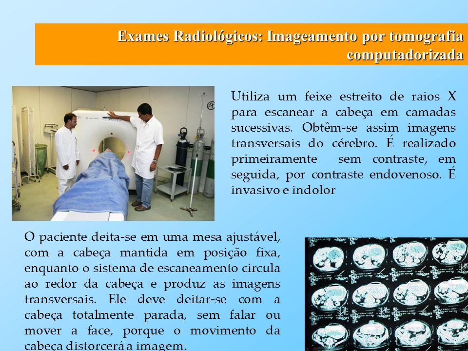 Exames Radiológicos: Imageamento por tomografia computadorizada