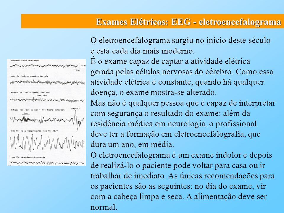 Exames Elétricos: EEG - eletroencefalograma