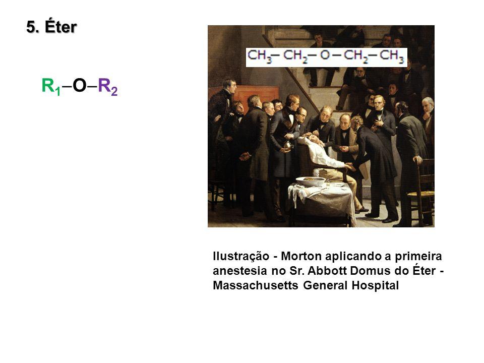 5. Éter R1OR2. Ilustração - Morton aplicando a primeira anestesia no Sr.