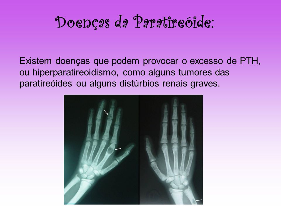 Doenças da Paratireóide: